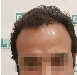 Hair Implanted 6 Month